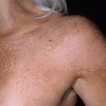Отрубевидный лишай у человека: лечение, фото болезни