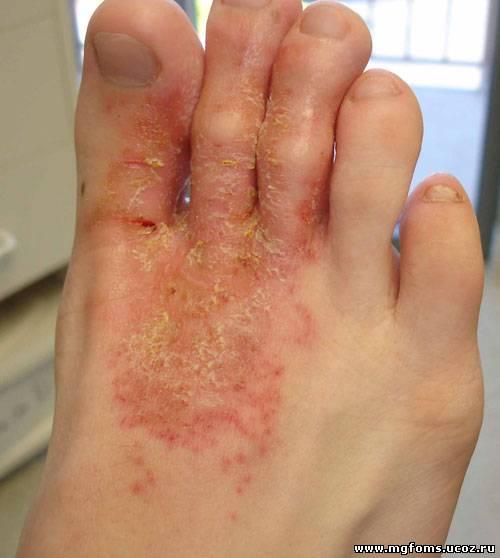 Удаление варикоза на яичке