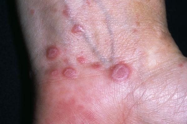 народное лечение от паразитов в организме человека