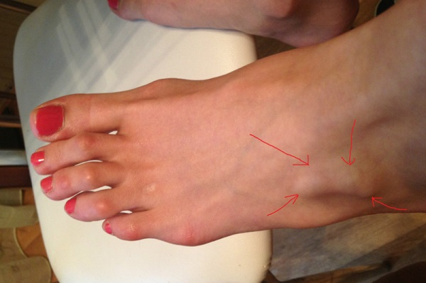 Болит нога на сгибе стопы что это может быть и как лечить