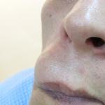 Атерома на лице: фото, лечение и удаление опухоли