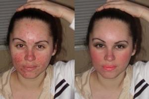 Результаты лечения - фото до и после