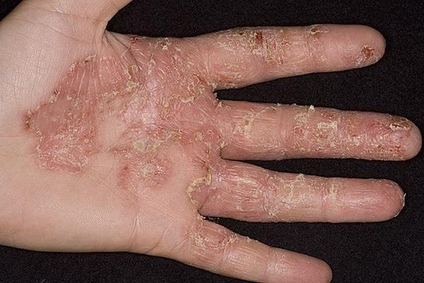 Экзема на руках лечение фото начальная стадия. Чем лечить экзему на пальцах рук