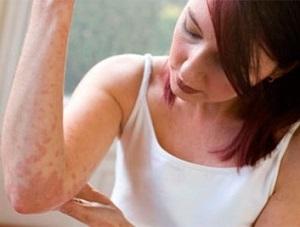 Раздражение кожи предплечий