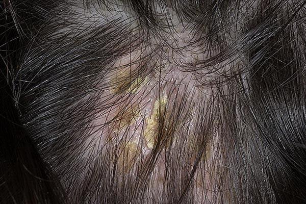 Симптомы. Проявления себореи