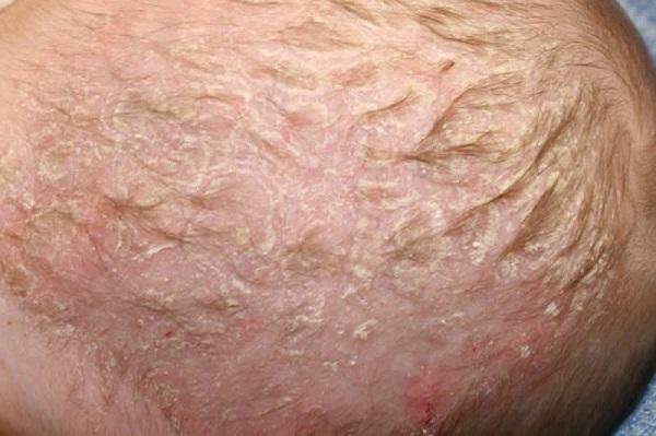 51Шелушение на коже чешуйками
