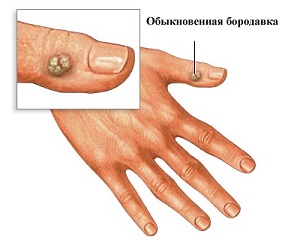 Доброкачественное новообразование на пальце