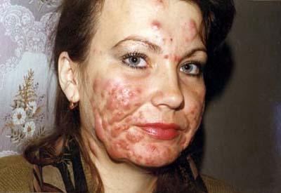 Лечение аденоидов и аллергического ринита у детей