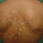Чем лечить отрубевидный лишай у человека мази