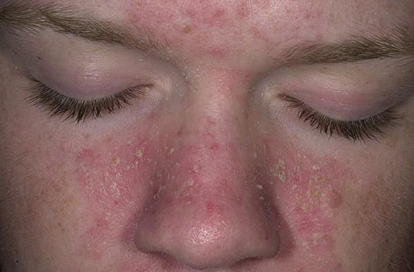 кожа на лице сухая не эластичная