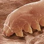 Фото и симптомы демодекоза у человека