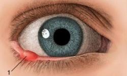 Жировик на веке глаза