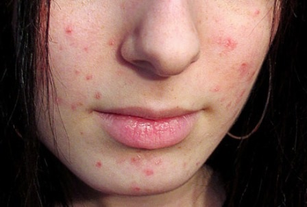 Маска для глубокого очищения кожи лица от чёрных точек