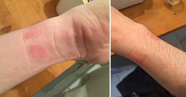 Фото аллергии на коже от Apple Watch