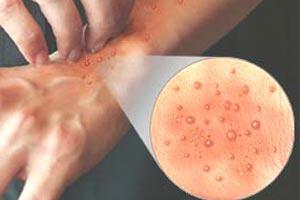 Сыпь и зуд на руках - это симптом дерматита