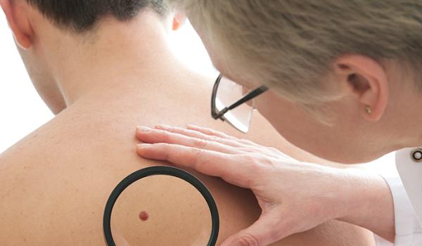 Осмотр кожи у врача-дерматолога
