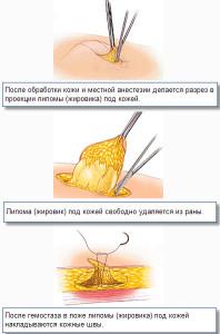 На фото показано, как удалить жировик