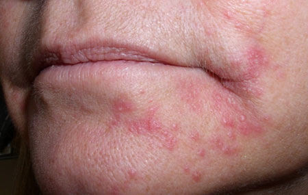 peroralniy-dermatit-foto
